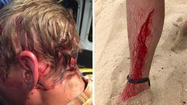 bear and shark wounds - Dylan McWilliam