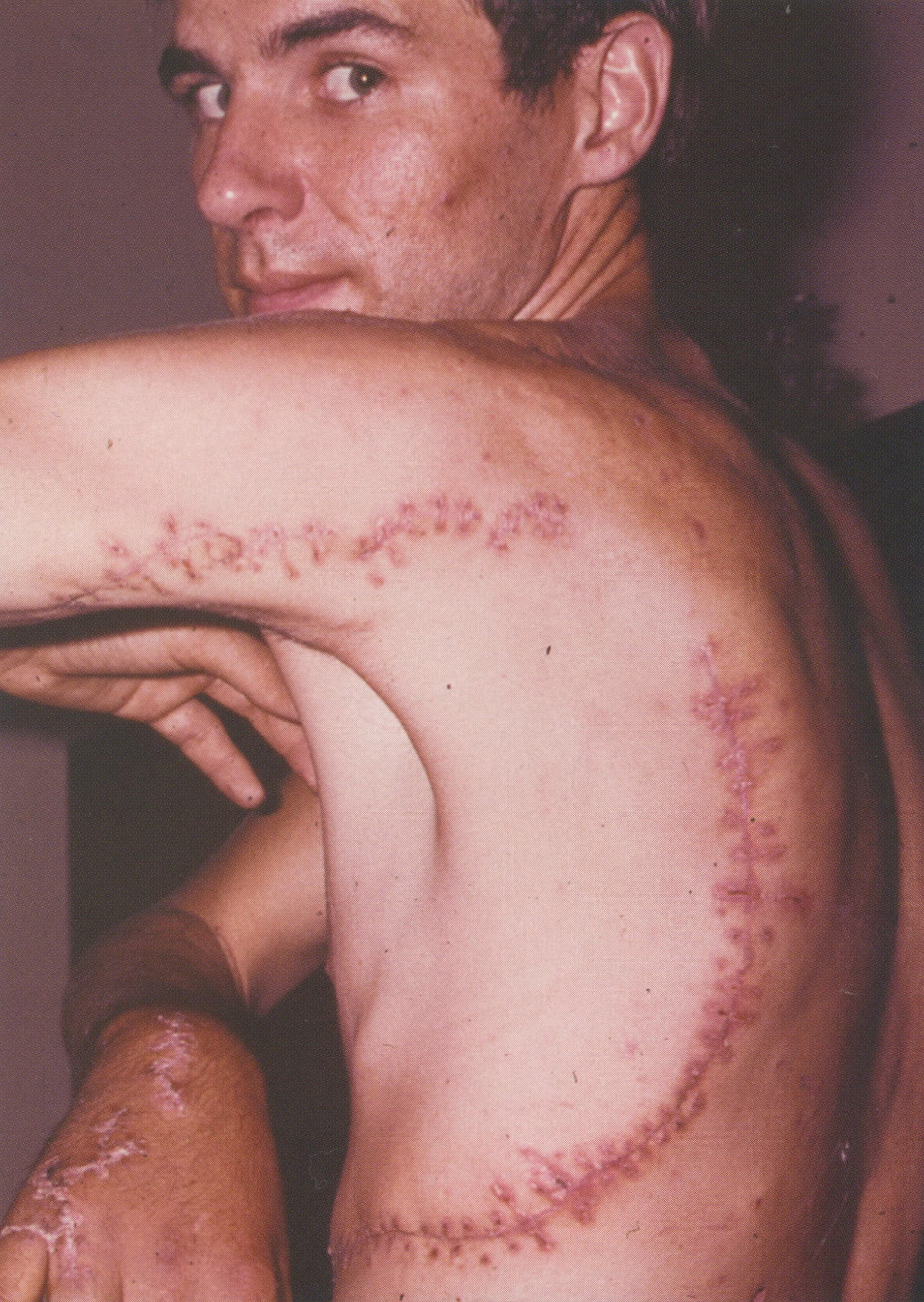 Rodney Fox Scars from Great white shark attack